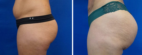 Before And After Pictures Of Brazilian Butt Lift Patients