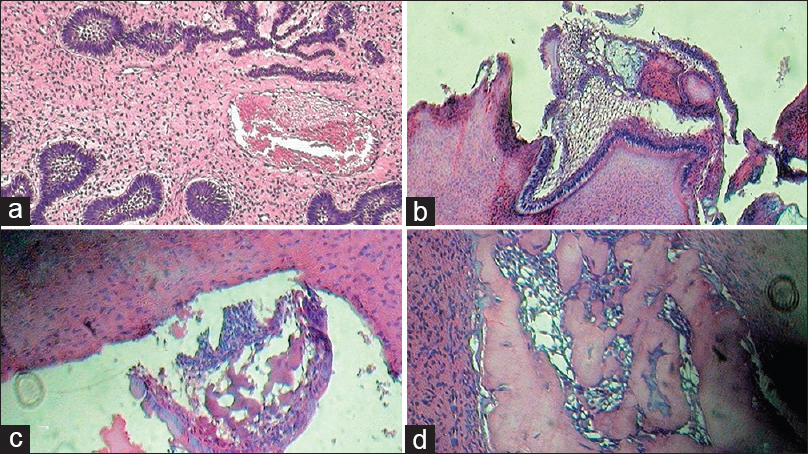 Ameloblastic fibroma with ghost cell differentiation and ...