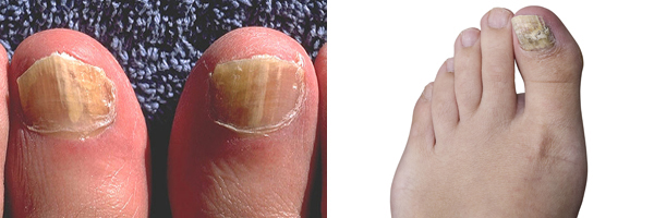 Types Toenail Diseases