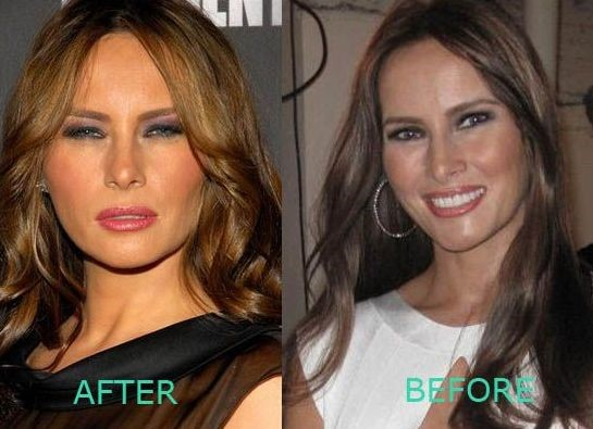 Melania Trump is Famous For Her Plastic Surgeries