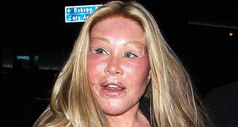 Jocelin Wildstein Catwoman Plastic Surgery Disaster
