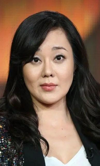 Actress Korean Surgery After Plastic