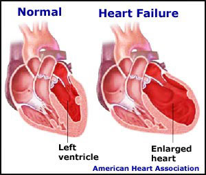 Read about congenital heart defect symptoms causes types treatment and more