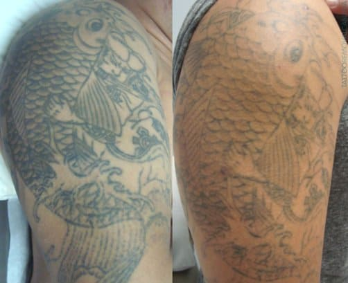 Process Removal After Laser Tattoo And