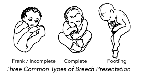 Breech-3-types