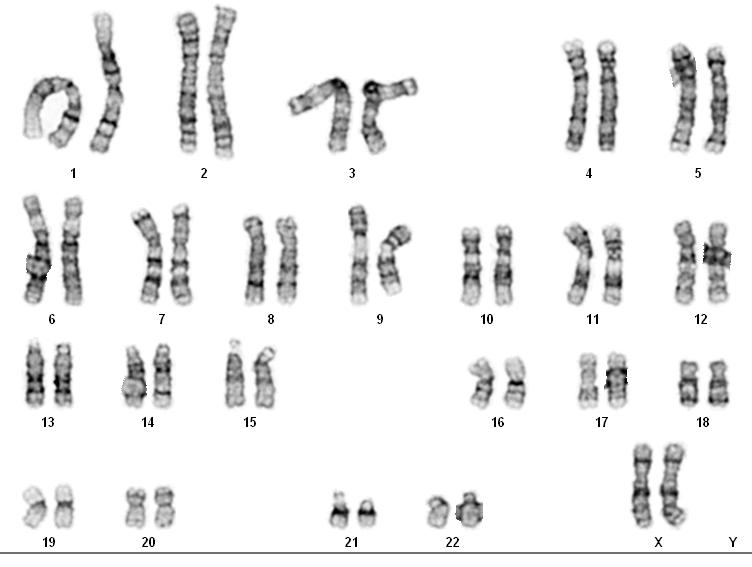 Karyotype Disease Huntingtons