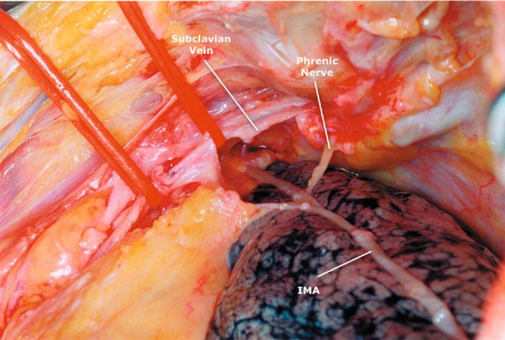 Left Subclavian Artery Anatomy