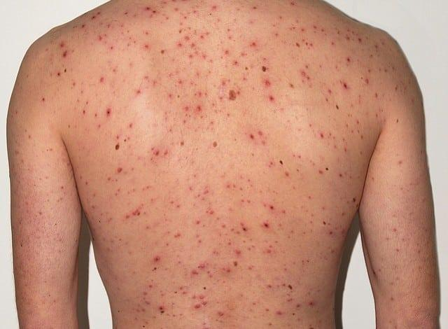 Rash Cause What Shingles