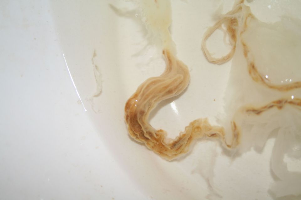 How Humans Get Tapeworms