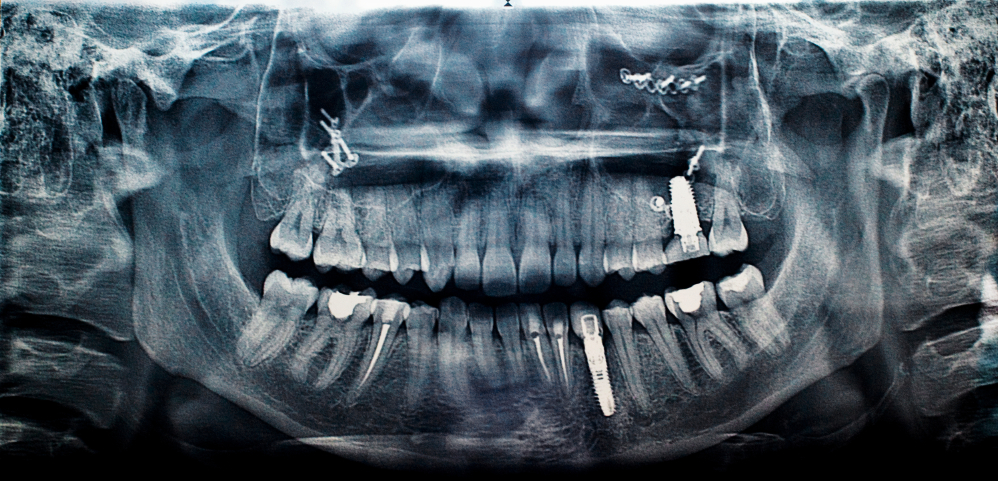 Front Tooth Implant Dentist