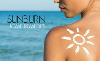 sunburnt-remedy