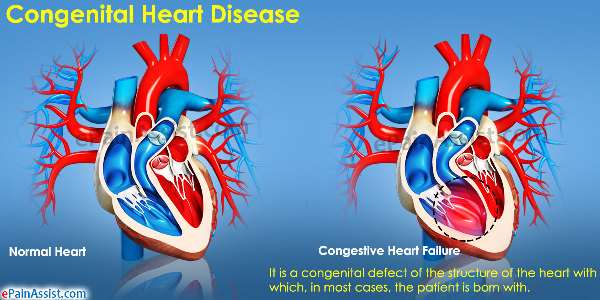 Congenital Heart Disease|Causes|Symptoms|Treatment