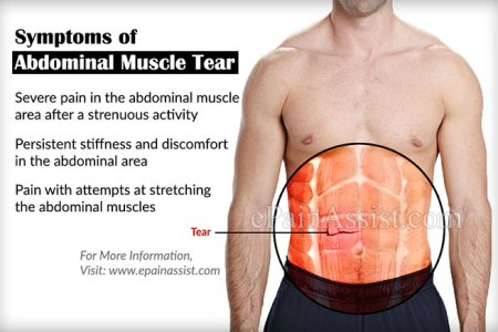 best Pain In Lower Left Abdomen Female image collection