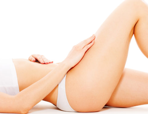 Stretch Mark Removal London
