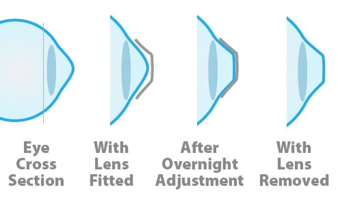 Orthokeratology – Wake up with Clear Vision Everyday