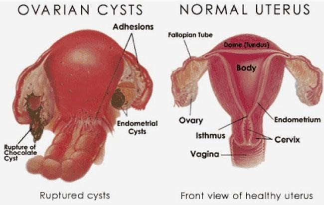Menstruation Clots During Endometriosis Blood