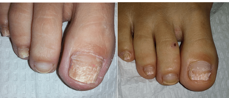 Diabetic Foot Problems Diabetes