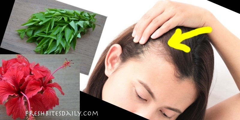 Herbs for Hair Loss     Natural Remedies for Thinning Hair   Fresh     Herbs for Hair Loss     Natural Remedies for Thinning Hair   Fresh Bites Daily