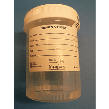 Microbiology Specimen Collection and Transport A sterile container