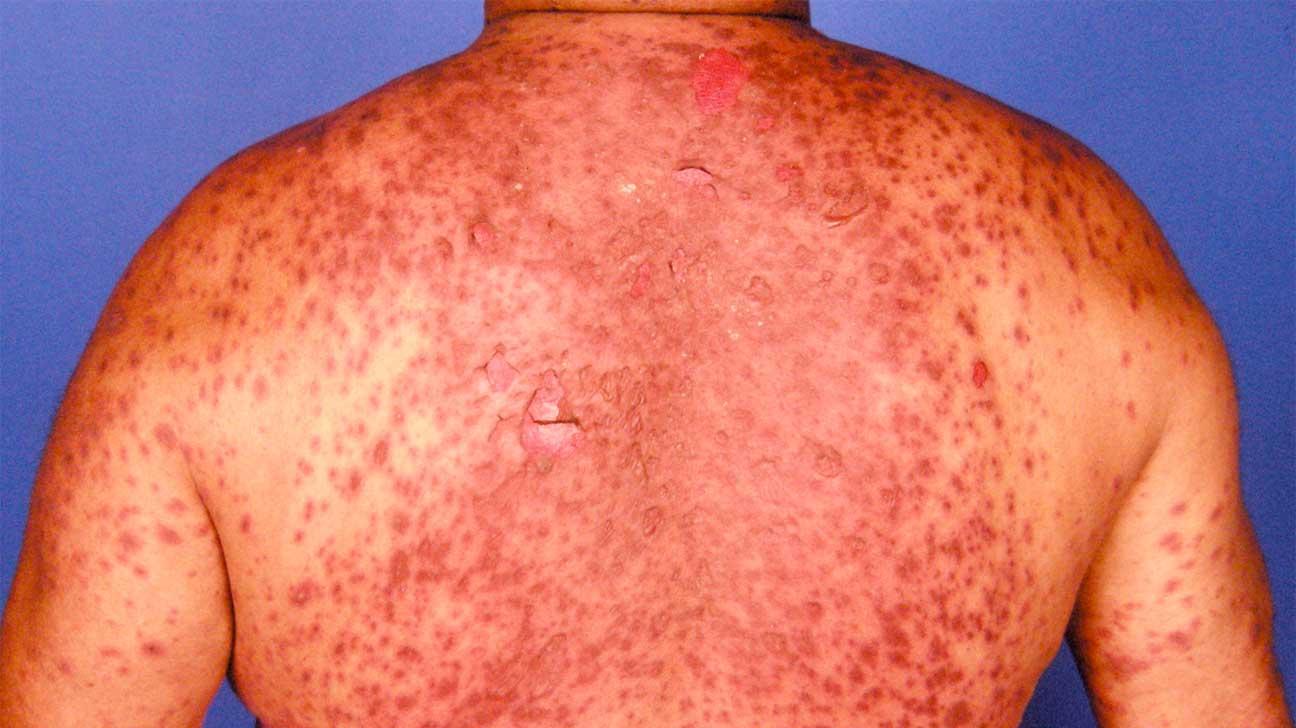 Pictures Lamotrigine Effects Side Rash
