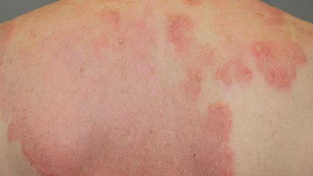 Pictures Rheumatic Fever Rash