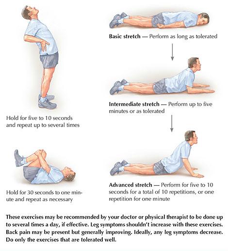 Sciatic Nerve Google Exercises