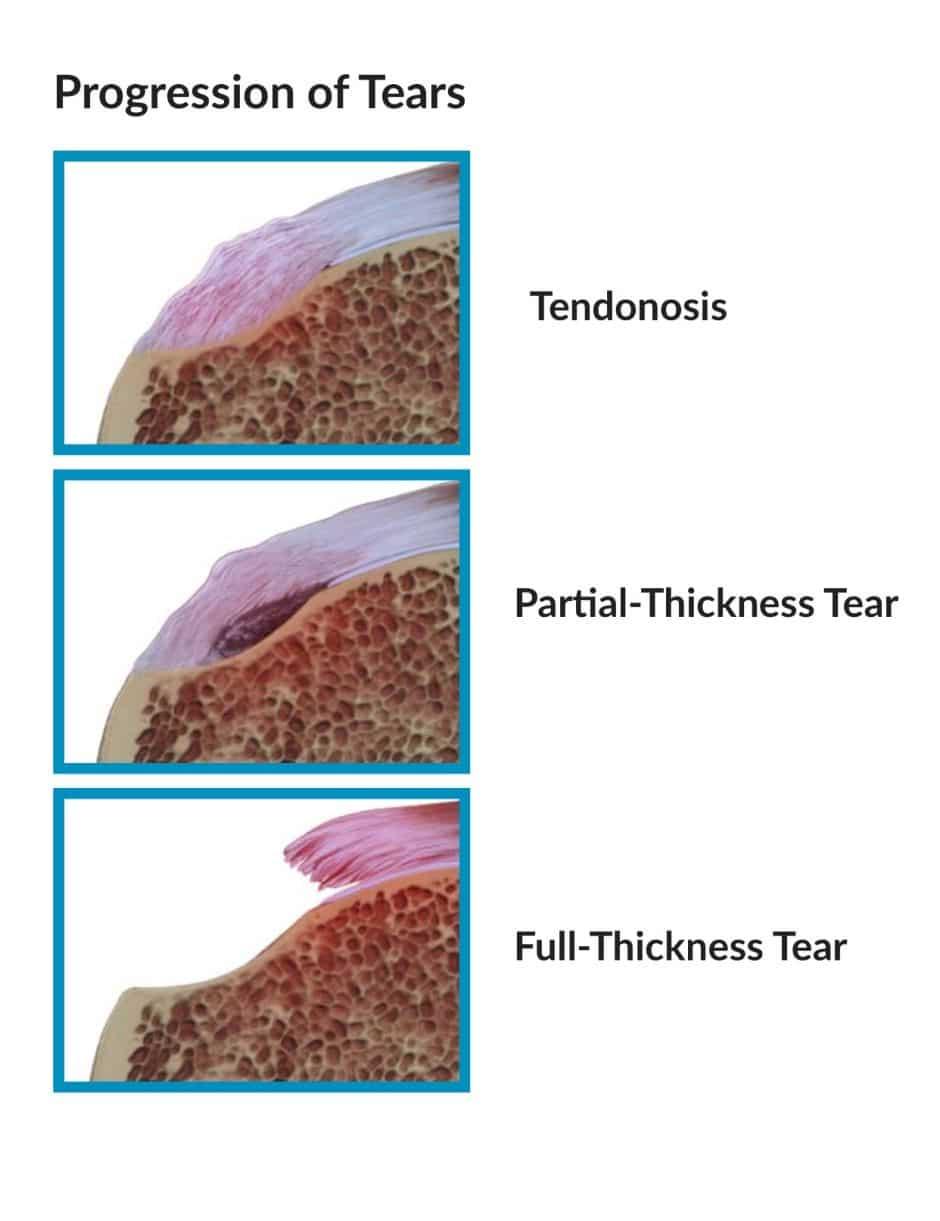 Tendinosis Shoulder