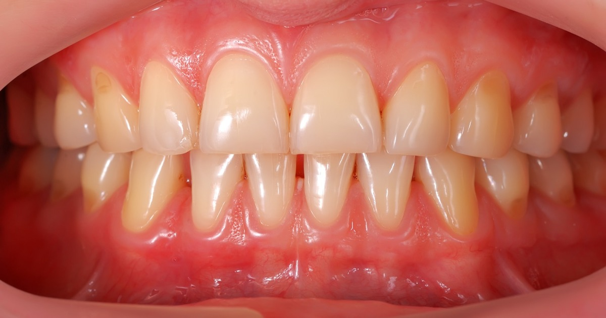 Gingivitis And Periodontitis Introduction