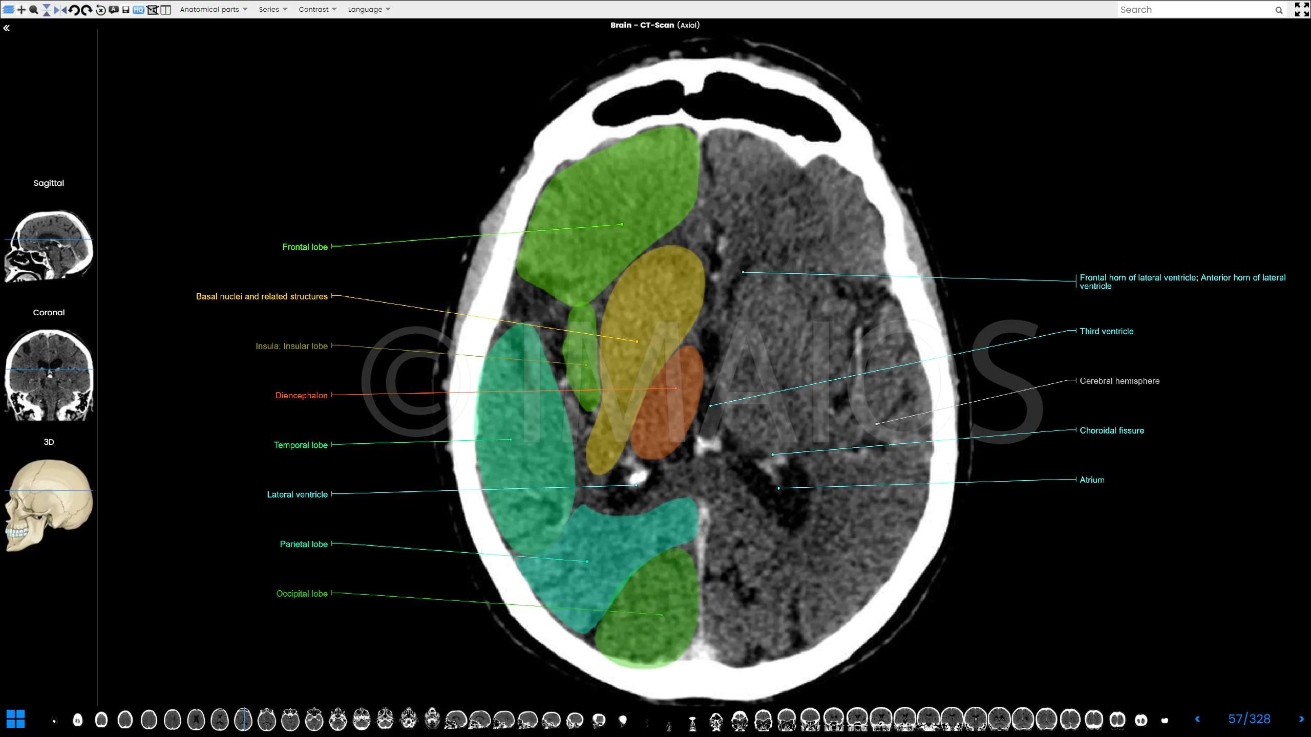 Cerebral Venous Sinuses Anatomy