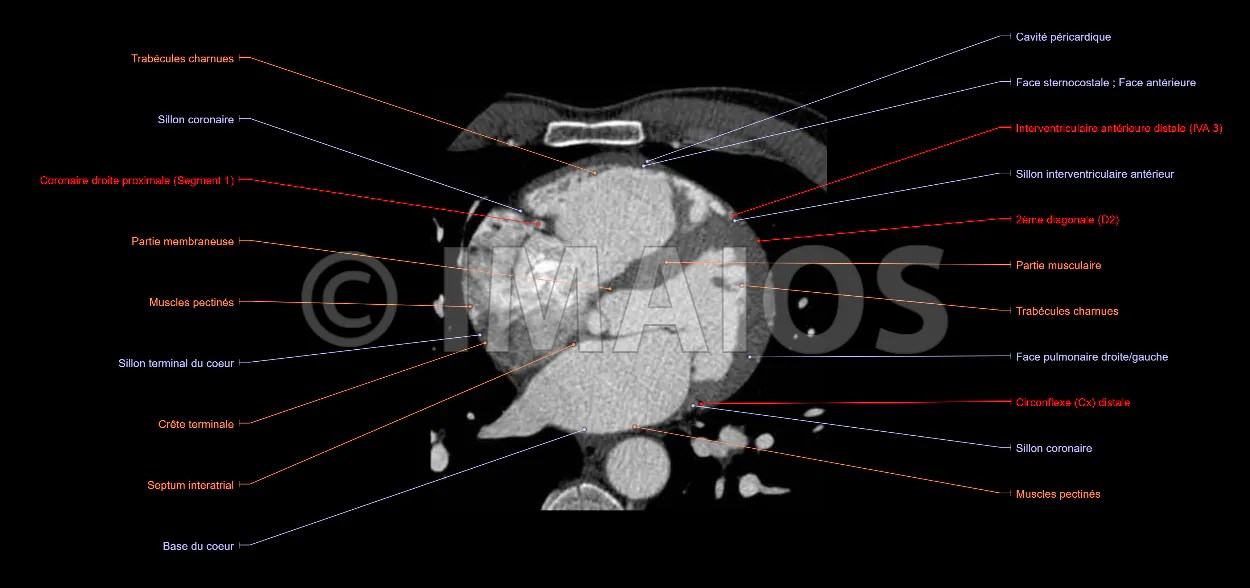 Contemporary Ct Scan Chest Anatomy Images - Anatomy And Physiology ...