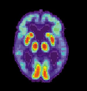 Alzheimer's Disease: new research offers hope