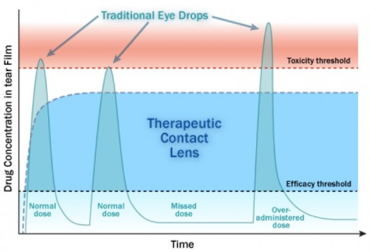 Experimental contact lenses deliver eye medication in controlled doses