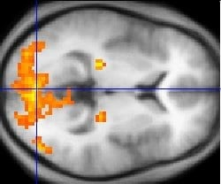 The Brain Activity Map
