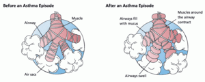 Physician reveals drug breakthrough for asthma patients