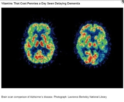 Vitamin B for Alzheimer's and dementia delay and protection, new research study