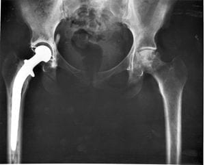 Southampton engineers develop novel method to increase lifespan of joint replacements