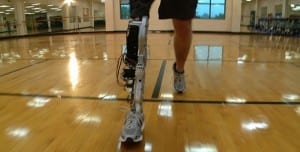Robotic advances promise artificial legs that emulate healthy limbs