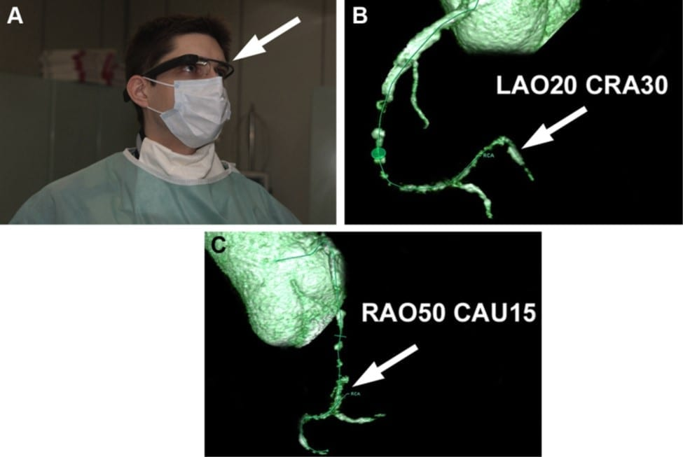 First-in-Man Use of Virtual Reality Imaging in Cardiac Cath Lab to Treat Blocked Coronary Artery