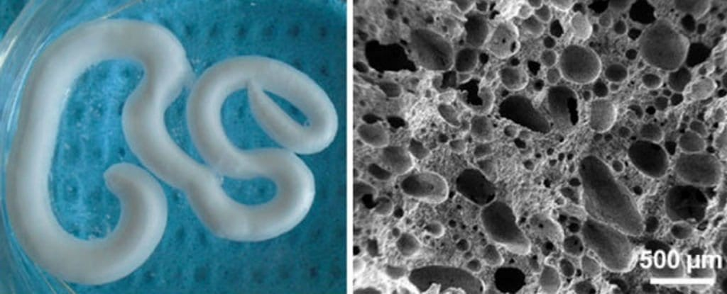 This new injectable foam can repair and regrow degenerating bones