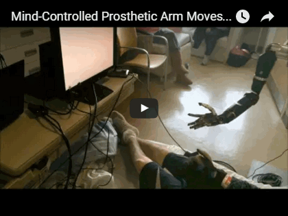 Mind-Controlled Prosthetic Arm Moves Individual 'Fingers'