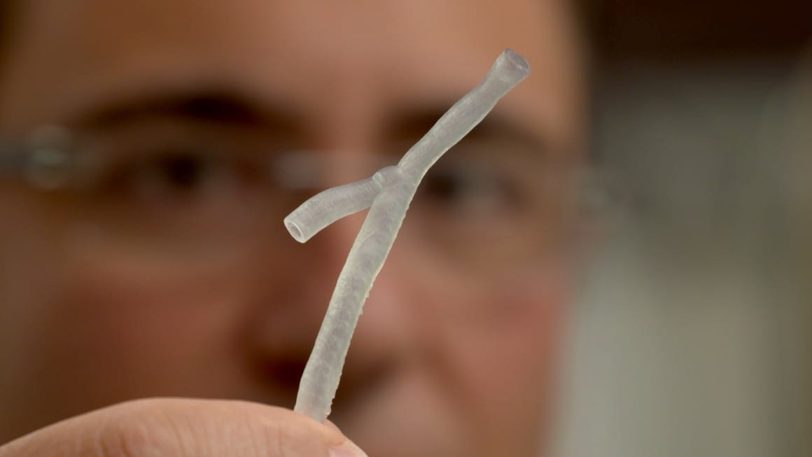 Cardiologists use 3D printing to create personalised treatment for heart disease