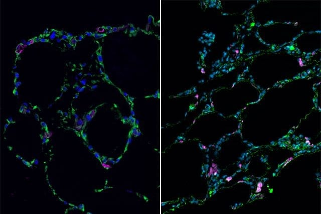 Researchers use stem cells to grow 3-D lung-in-a-dish