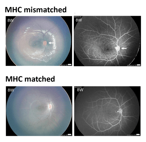 Success! iPSC-derived retinal cells from one monkey transplanted into another without rejection