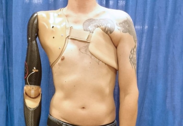 A robotic prosthetic arm that detects signals from nerves in the spinal cord