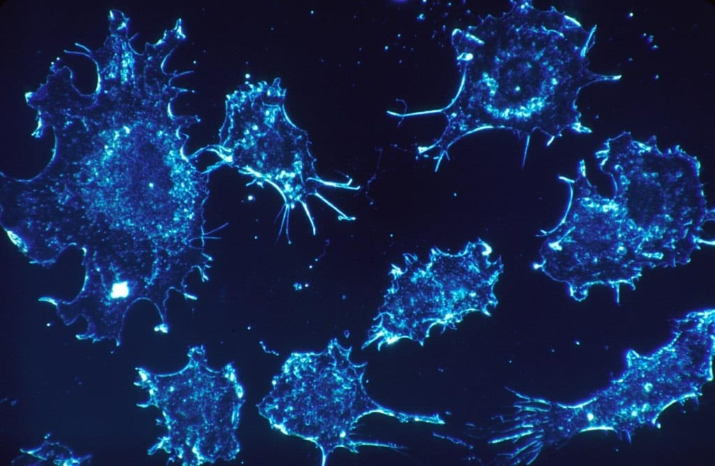 Any cancer cell could be killed by suicide molecules - a major breakthrough?