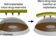 A new contact lens microneedle patch to treat eye diseases