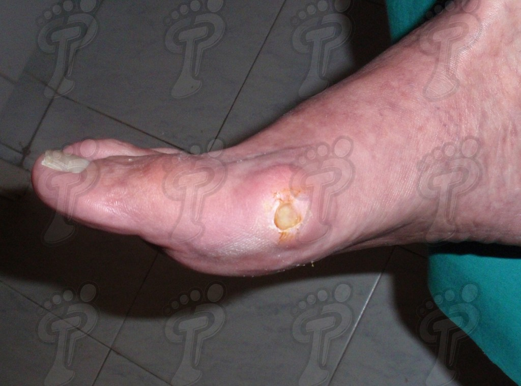 The diabetic foot: general considerations