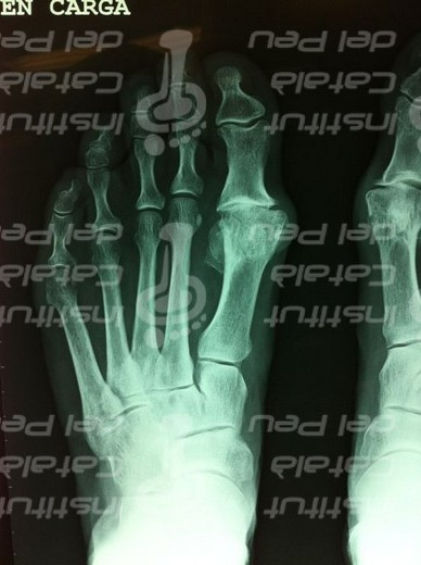 SURGICAL TREATMENT OF THE HALLUX RIGIDUS