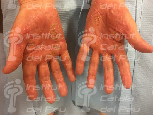 PALMOPLANTAR KERATODERMA. CLASSIFICATION AND TREATMENTS.