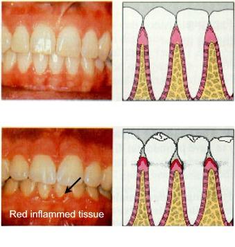 How To Recognize Gingivitis Symptoms Intelligent Dental